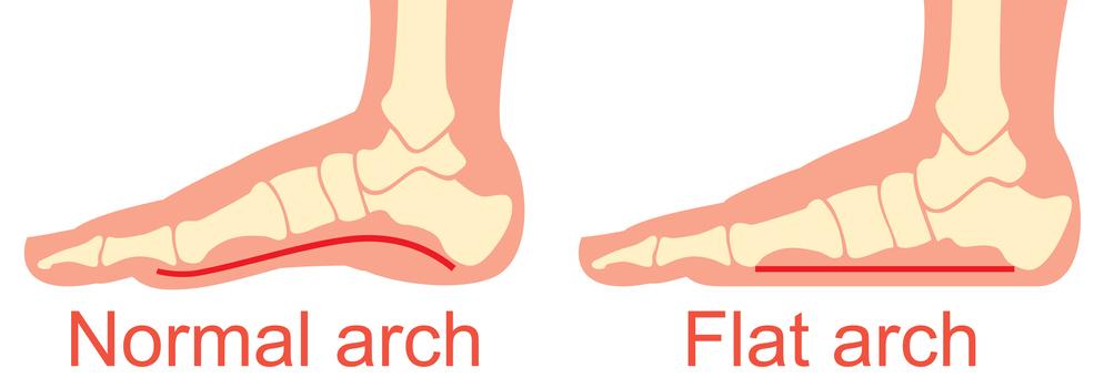 足 の 裏側 が 痛い