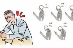 「スマホをうつむいて見る姿勢」はどれくらいカラダに悪い?スマホ首を整形外科医が解説